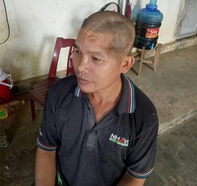 Ông Trần Văn Thanh ở Đắk Nông bị nhóm bảo vệ của Công ty Long Sơn gây thương tích đến 70%.