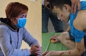 Hình minh hoạ. Chủ quán bánh xèo, người bị tố cáo đã hành hạ nhân viên (trái) và cháu bé bị chủ quán đánh đập với những vết thương trên người