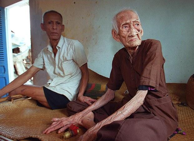 Hình minh họa. Cụ bà Lê Thị Có (117 tuổi) tại nhà của mình ở ngoại thành thành phố Hồ Chí Minh, cùng con trai thứ 10 (65 tuổi).