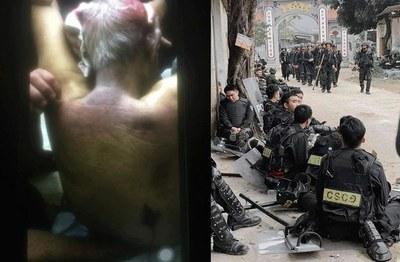 Hình minh hoạ. Phần lưng với những vết thâm tím của cụ Lê Đình Kình - người bị công an bắn chết khi tấn công vào Đồng Tâm hôm 9/1/2020