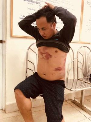 Ông Hà Văn Nam và những vết thương do bị đánh vì phản đối trạm thu phí BOT hồi cuối tháng 1/2019